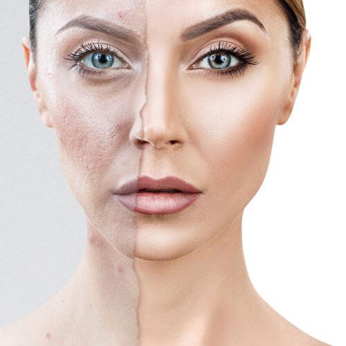 Gesichtshälften behandelt unbehandelt