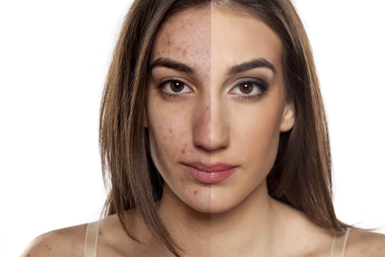 Unreine Haut